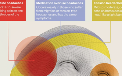 A Visual Guide To Headaches Infographic F