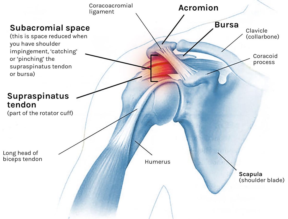 Shoulder Impingement