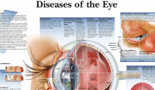 Diseases Of The Eye Chart F